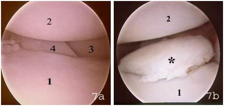 Abbildung 7: Jeweils ein rechtes Ellbogengelenk in arthroskopischer Darstellung von der Innenseite her. In der Mitte ist zur Orientierung als Skizze der einzusehende Gelenkabschnitt (Kreis) abgebildet: (a) gesundes Ellbogengelenk mit intaktem Gelenkknorpel über dem (1) Processus coronoideus medialis der Ulna, (2) der inneren und (3) der äußeren Gelenkwalze des Oberarms und (4) der angrenzenden Gelenkfläche des Radius. (b) Ellbogengelenk eines 4-monatigen Berner Sennenhundes mit einem FPC (*): im Bereich der Gelenkfläche des Processus coronoideus der Ulna (1) ist ein deutlich abgehobenes, mit Knorpel überzogenes Knochenstück zu erkennen. Der Gelenkknorpel der gegenüberliegenden inneren Gelenkwalze (2) ist noch intakt.